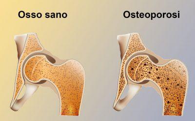 OSTEOPOROSI e OSTEOPENIA