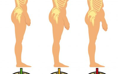 QUALI TIPI DI OSTEOPOROSI CONOSCIAMO? QUALI I FATTORI DI RISCHIO?