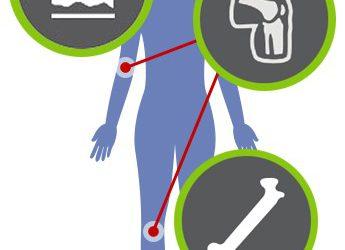 SILICIO: elemento traccia per le ossa