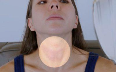 Perché le malattie tiroidee colpiscono prevalentemente il sesso femminile?