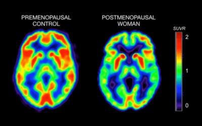 Ormoni, donne e cervello